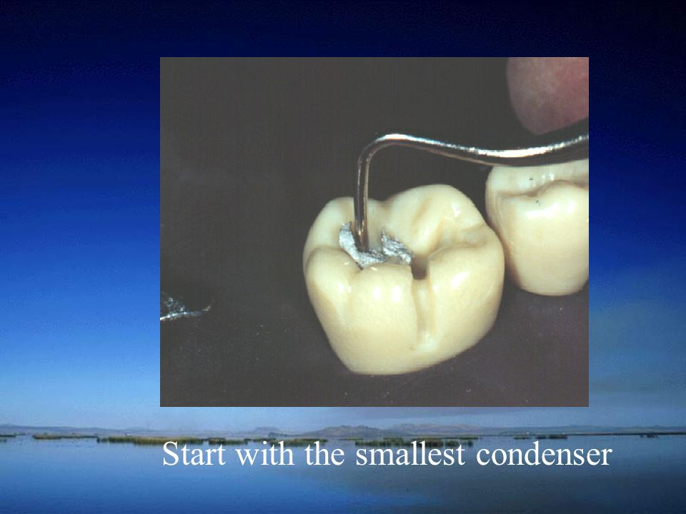 Start with the smallest condenser