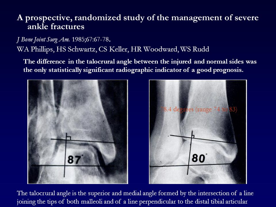 Epidemiology of adult ankle fractures in Sweden between ...