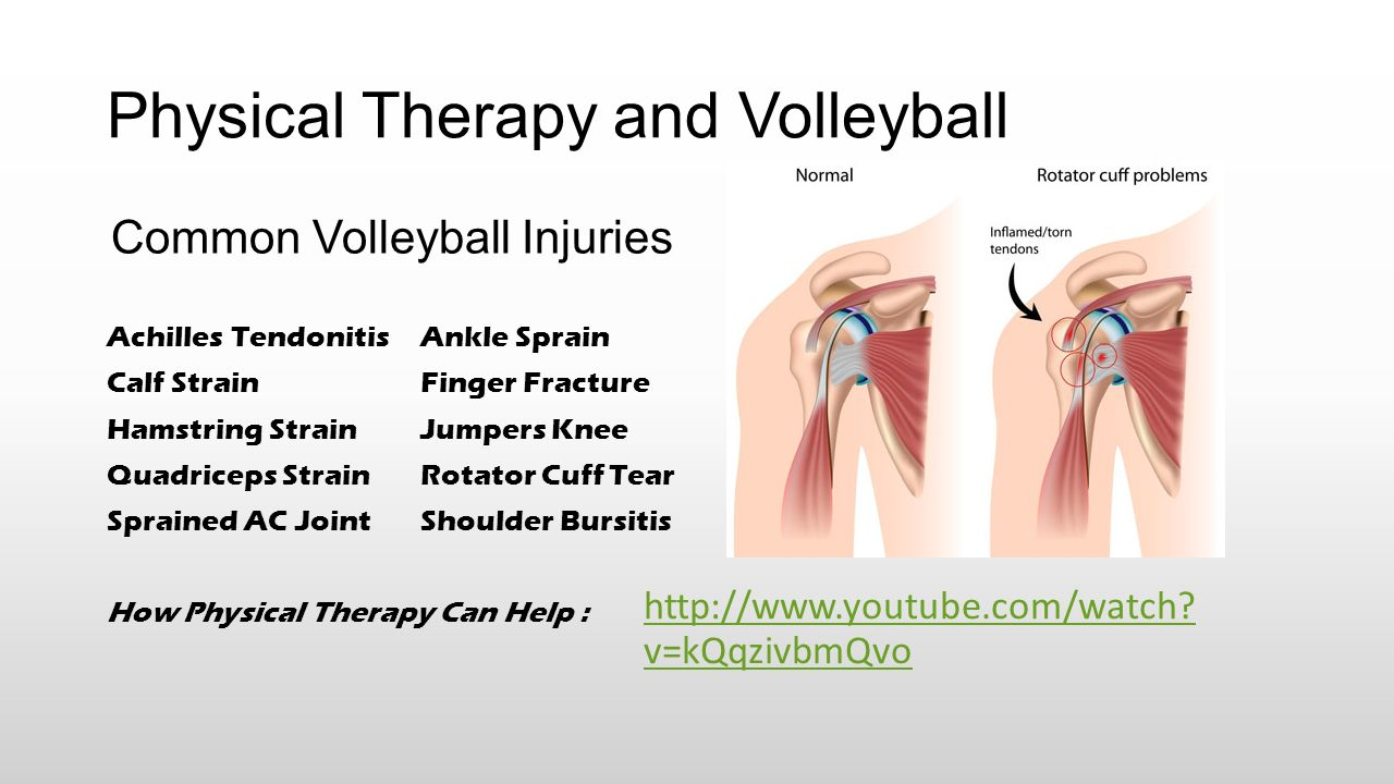 Achilles tendon rupture physical therapy - Physical Therapy And Volleyball