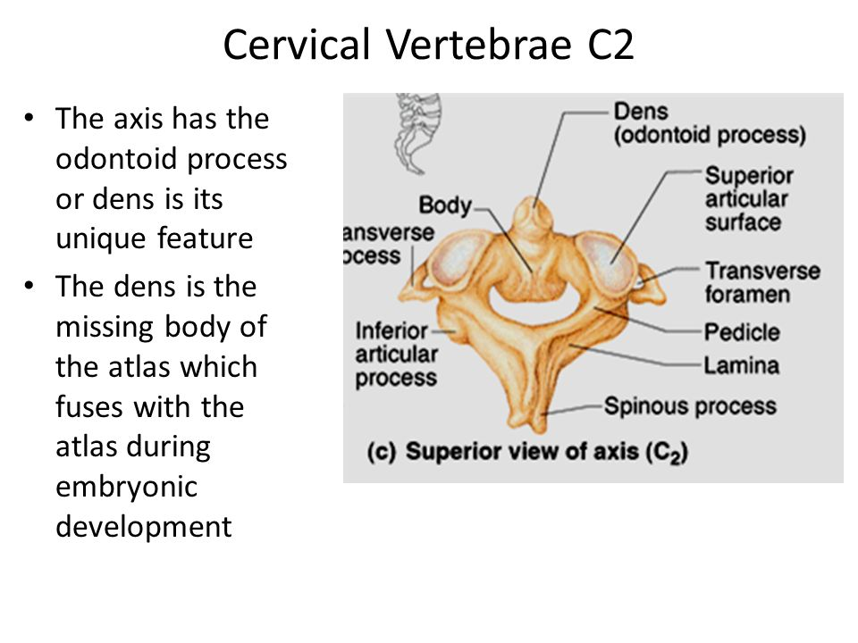 bones of the trunk. - ppt video online download, Sphenoid