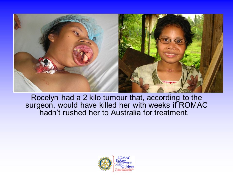 Rocelyn had a 2 kilo tumour that, according to the surgeon, would have killed her with weeks if ROMAC hadn't rushed her to Australia for treatment.
