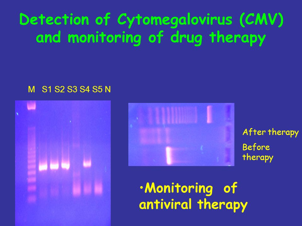Detection of Cytomegalovirus (CMV) and monitoring of drug therapy