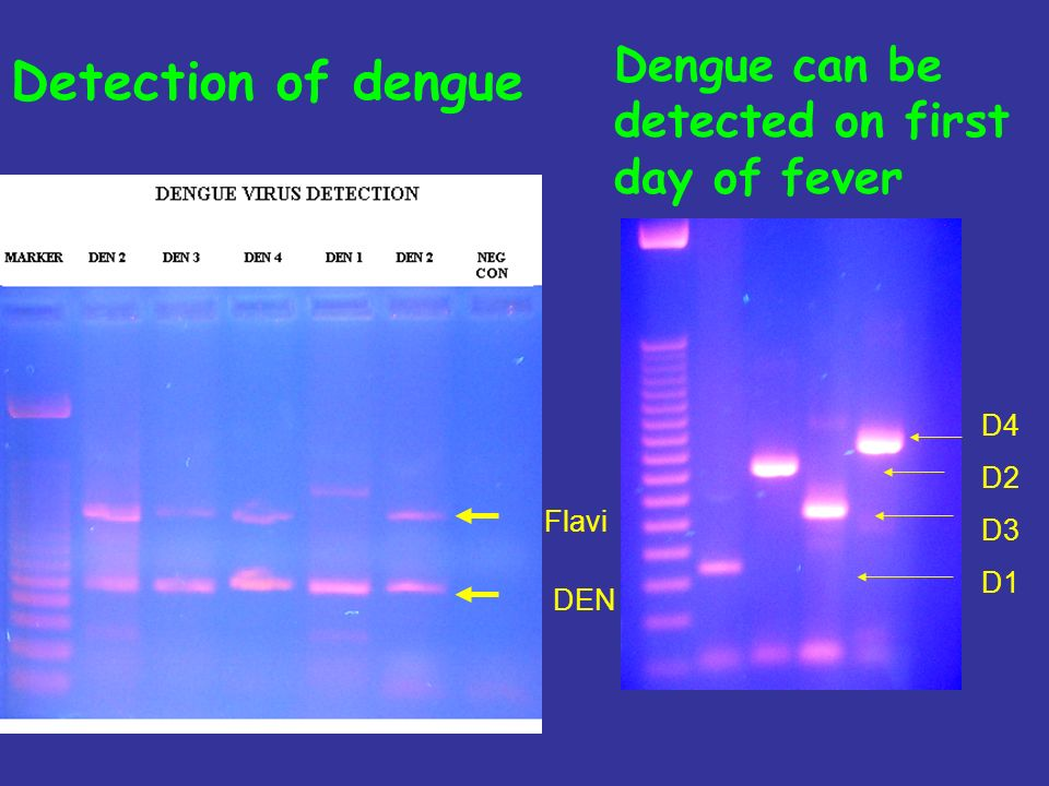 Detection of dengue Dengue can be detected on first day of fever D4 D2