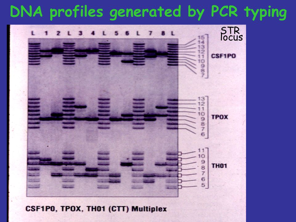 DNA profiles generated by PCR typing
