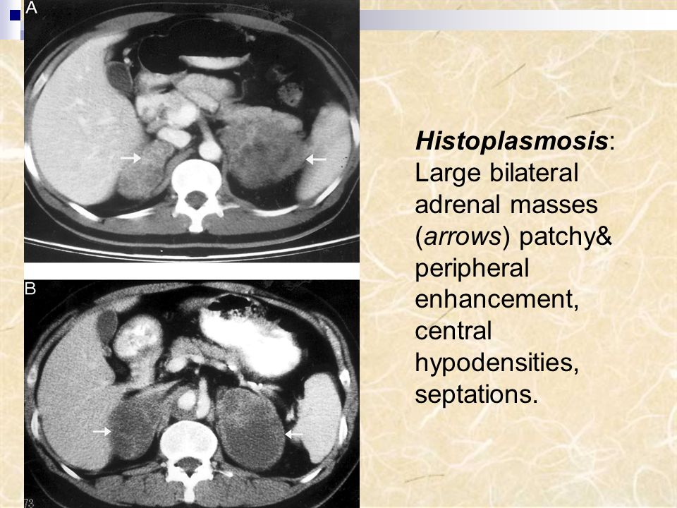 Histoplasmosis: Large bilateral adrenal masses (arrows) patchy& peripheral enhancement, central hypodensities, septations.