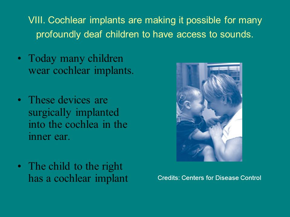Today many children wear cochlear implants.