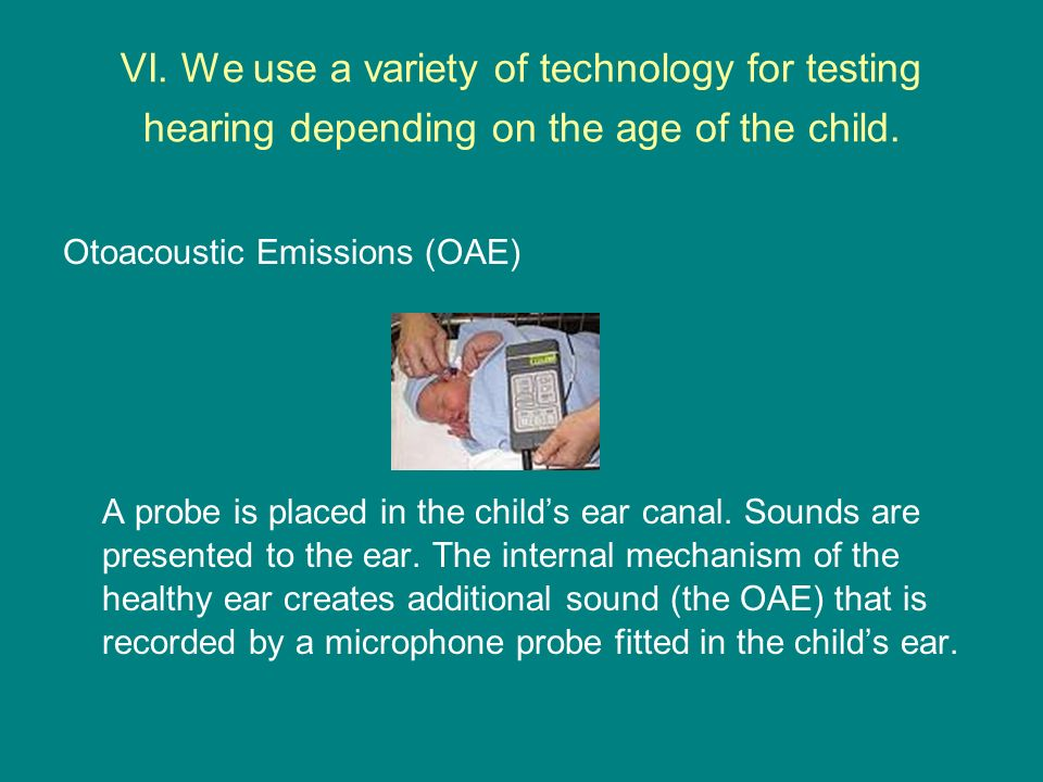 VI. We use a variety of technology for testing hearing depending on the age of the child.