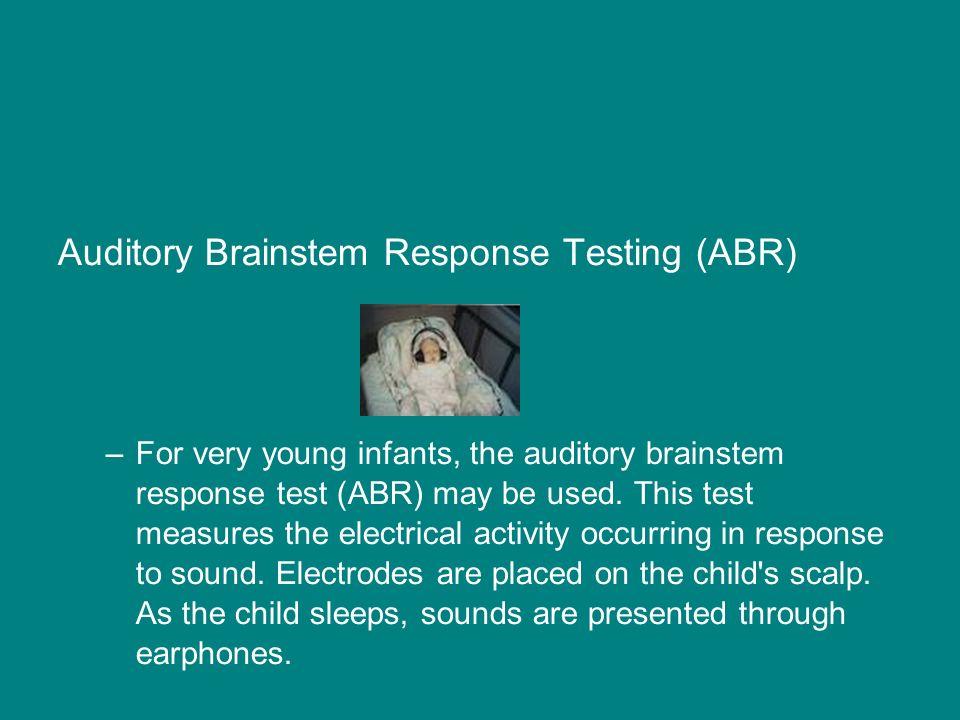 Auditory Brainstem Response Testing (ABR)
