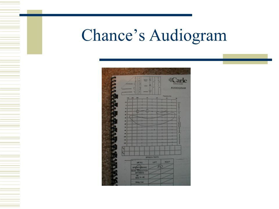 Chance's Audiogram