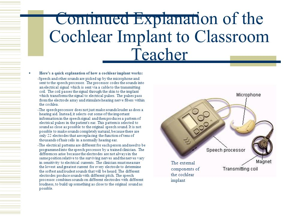 Continued Explanation of the Cochlear Implant to Classroom Teacher