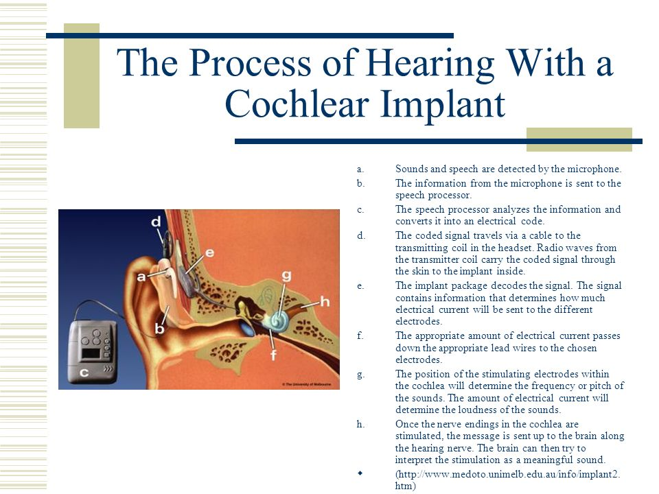 The Process of Hearing With a Cochlear Implant