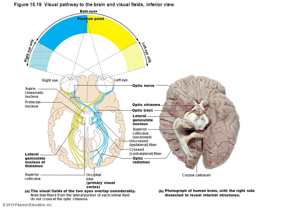 Brain inferior view 2018 images pictures neuron spinal cord special senses vision slides mostly marieb hoehn 9th brain inferior ccuart Image collections