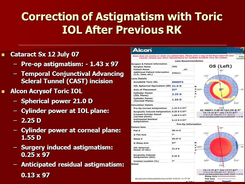 correction of astigmatism with toric iol after previous rk - ppt, Skeleton