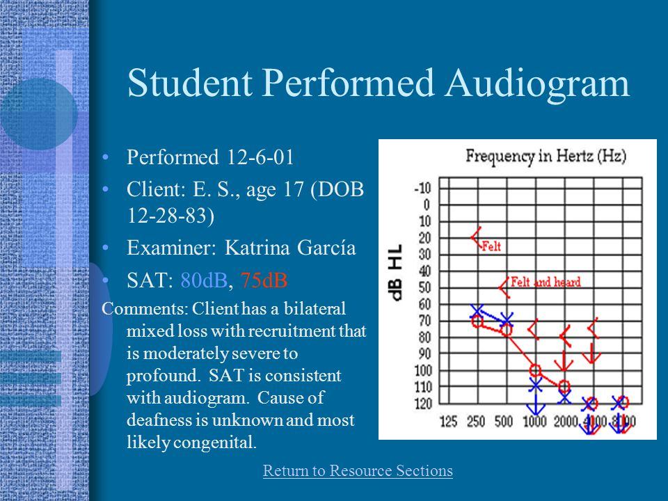 Student Performed Audiogram