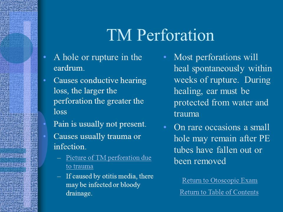 TM Perforation A hole or rupture in the eardrum.