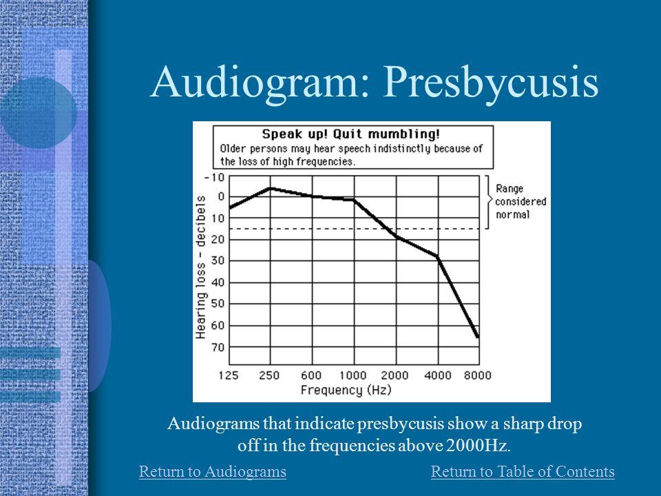 Audiogram: Presbycusis