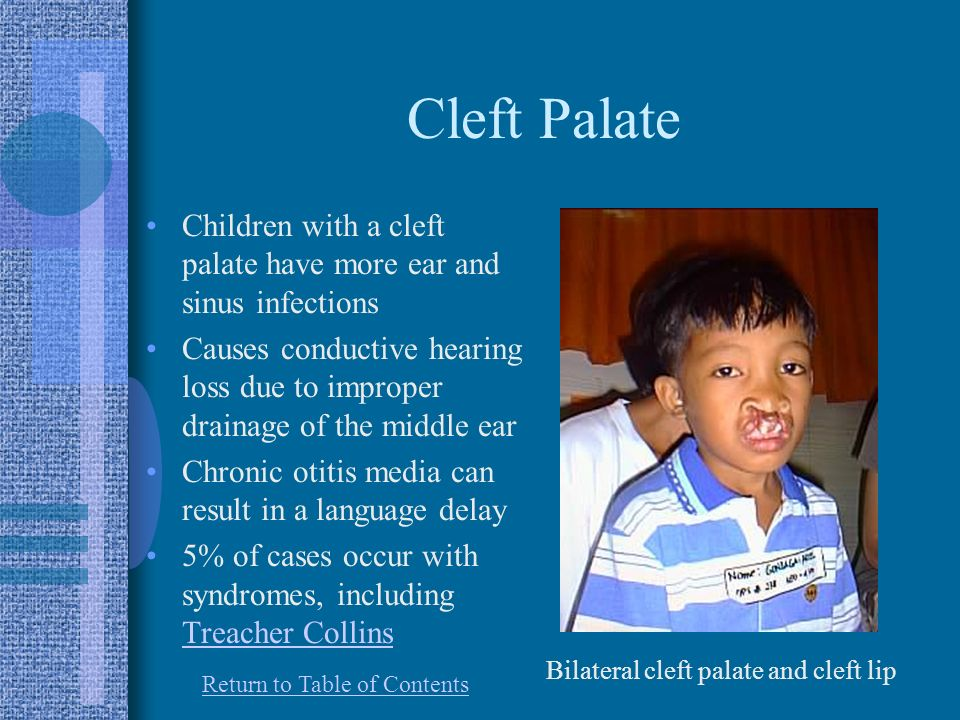Cleft Palate Children with a cleft palate have more ear and sinus infections.
