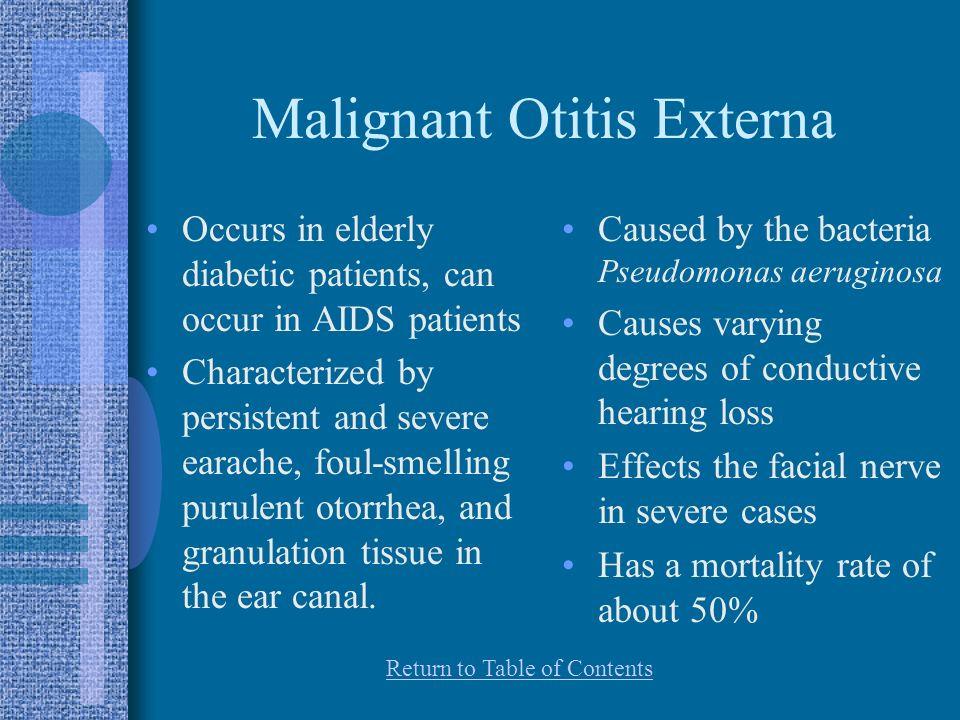 Malignant Otitis Externa