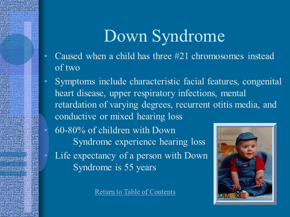 Down Syndrome Caused when a child has three #21 chromosomes instead of two.