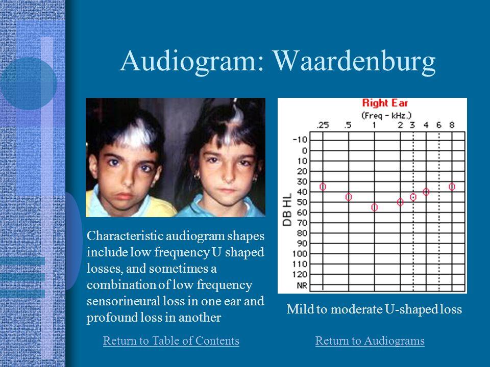 Audiogram: Waardenburg