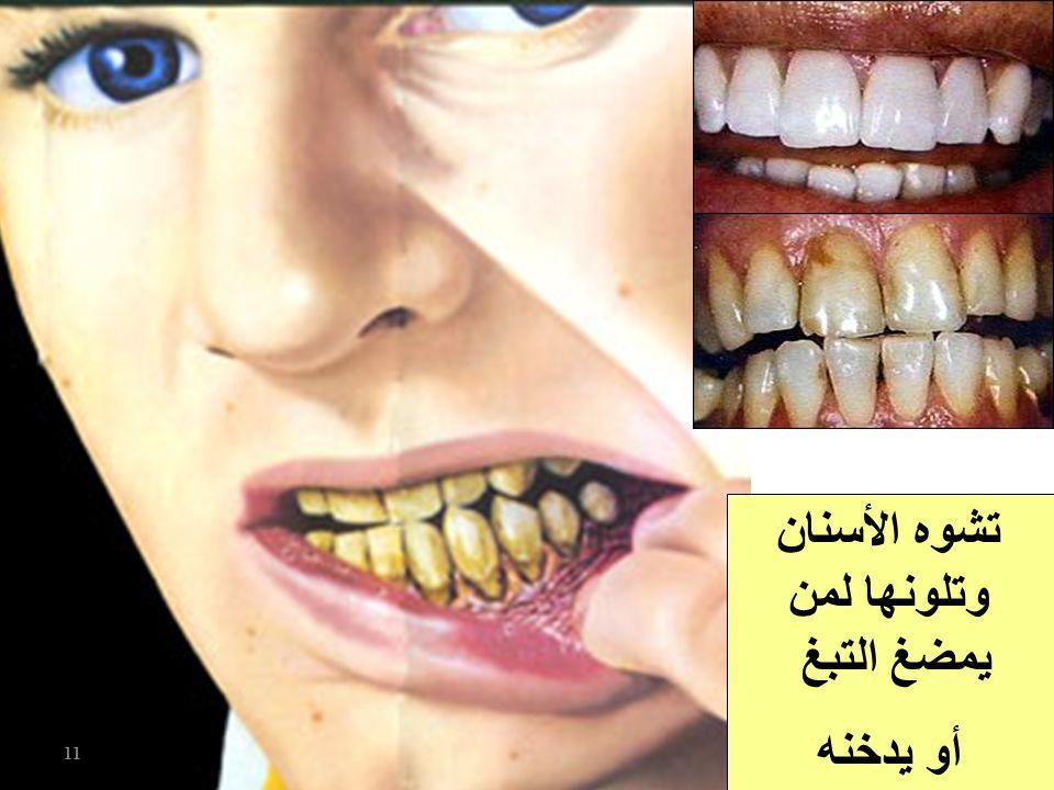 تشوه الأسنان وتلونها لمن يمضغ التبغ