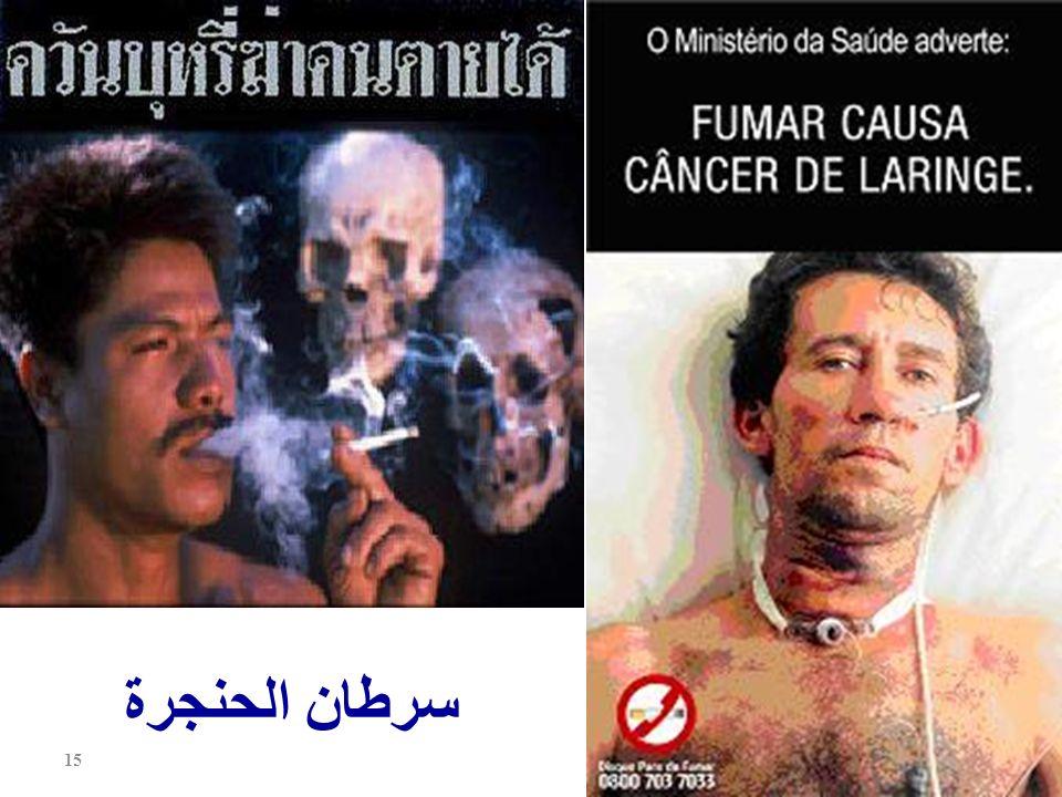سرطان الحنجرة