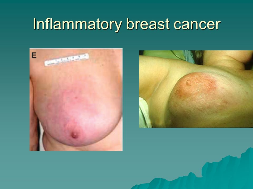 Inflammatory breast cancer and pictures