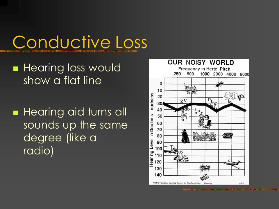 Conductive Loss Hearing loss would show a flat line