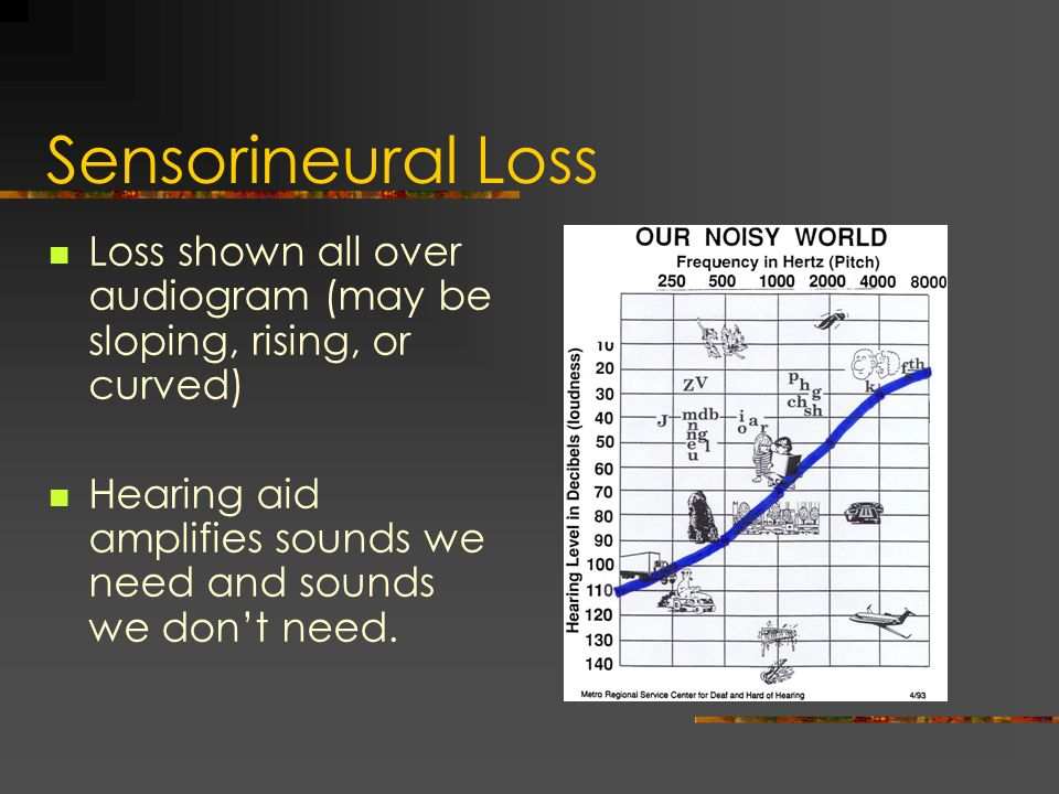Sensorineural Loss Loss shown all over audiogram (may be sloping, rising, or curved) Hearing aid amplifies sounds we need and sounds we don't need.