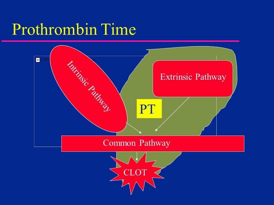 Prothrombin Time PT Intrinsic Pathway Extrinsic Pathway Common Pathway
