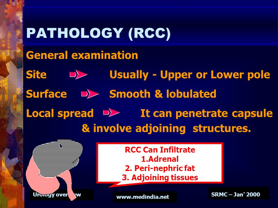 PATHOLOGY (RCC) General examination Site Usually - Upper or Lower pole