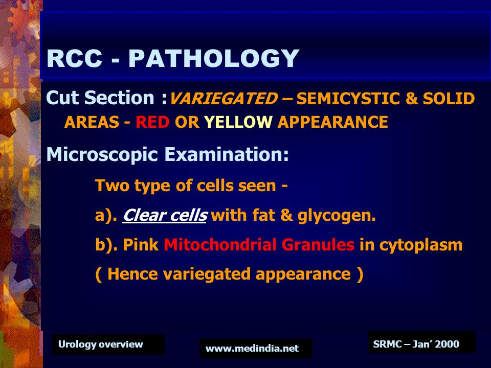 RCC - PATHOLOGY Cut Section :VARIEGATED – SEMICYSTIC & SOLID AREAS - RED OR YELLOW APPEARANCE. Microscopic Examination:
