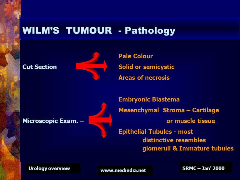 WILM'S TUMOUR - Pathology
