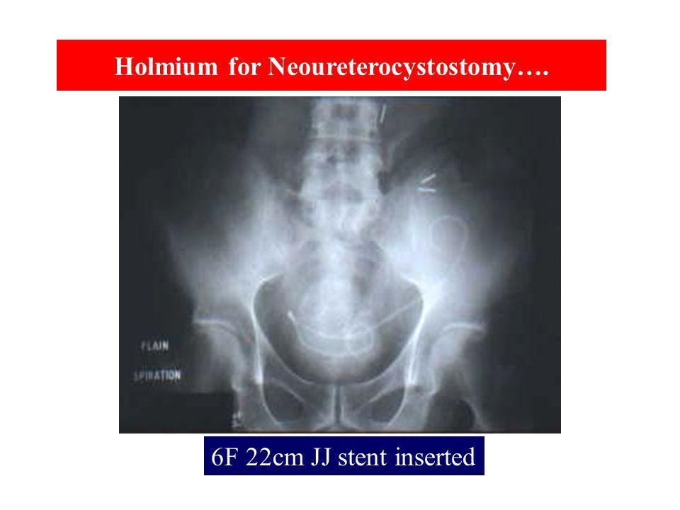Holmium for Neoureterocystostomy….