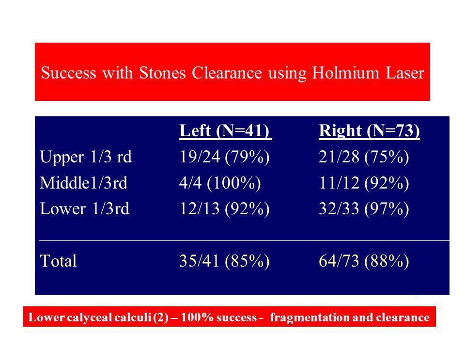 Success with Stones Clearance using Holmium Laser