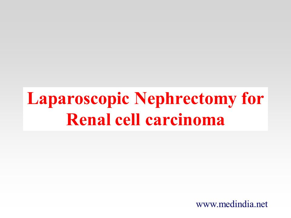 Laparoscopic Nephrectomy for Renal cell carcinoma