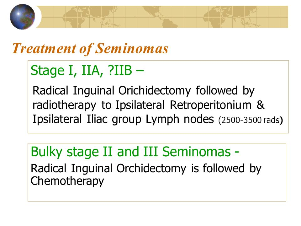 Treatment of Seminomas