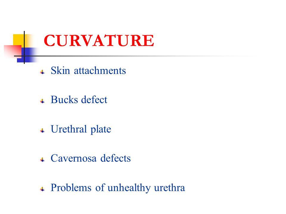 CURVATURE Skin attachments Bucks defect Urethral plate