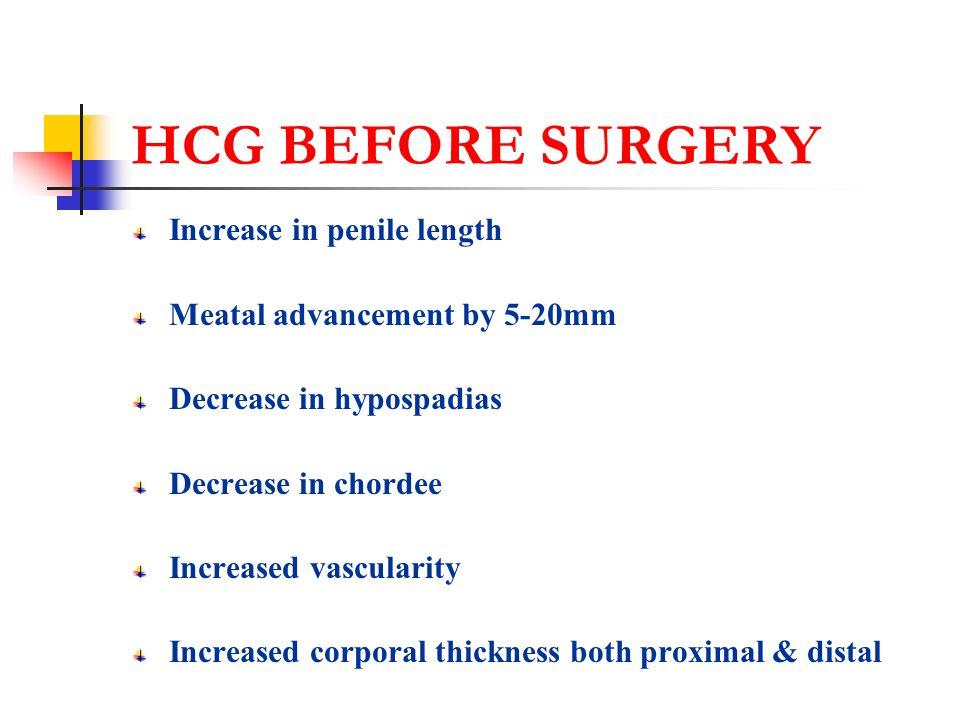 HCG BEFORE SURGERY Increase in penile length