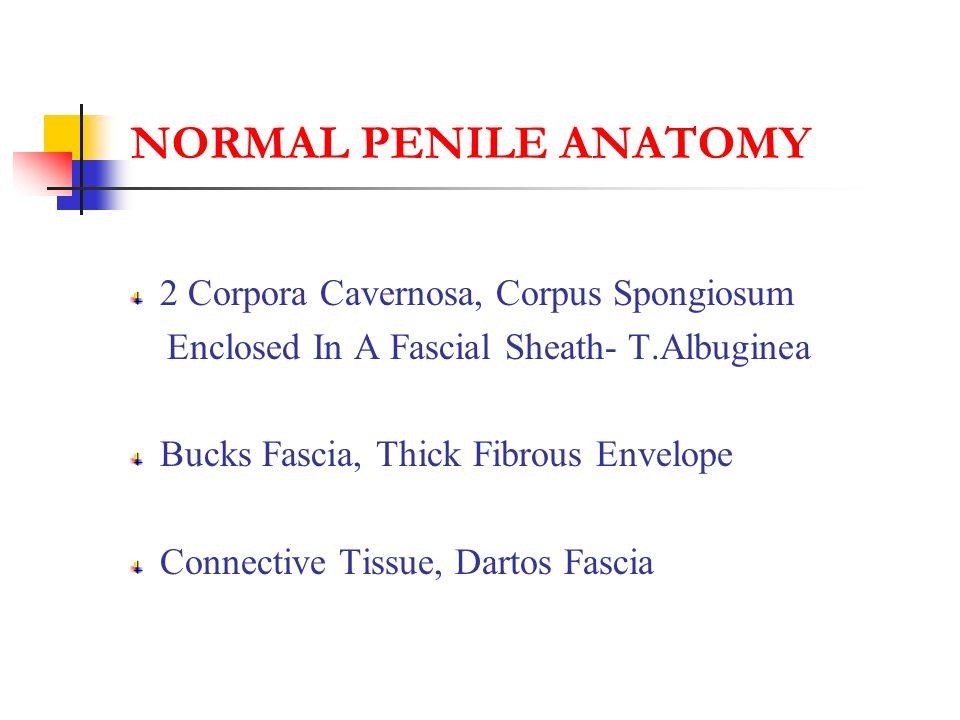 NORMAL PENILE ANATOMY 2 Corpora Cavernosa, Corpus Spongiosum