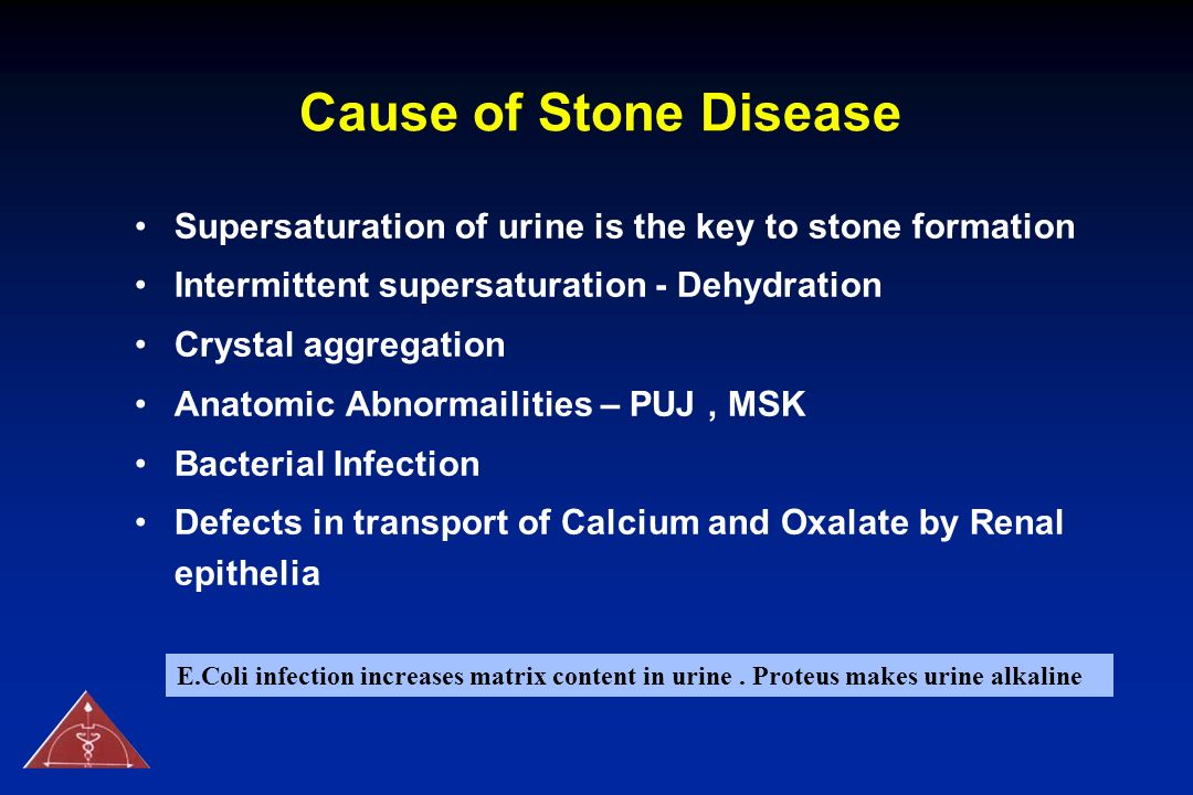 Cause of Stone Disease Supersaturation of urine is the key to stone formation. Intermittent supersaturation - Dehydration.