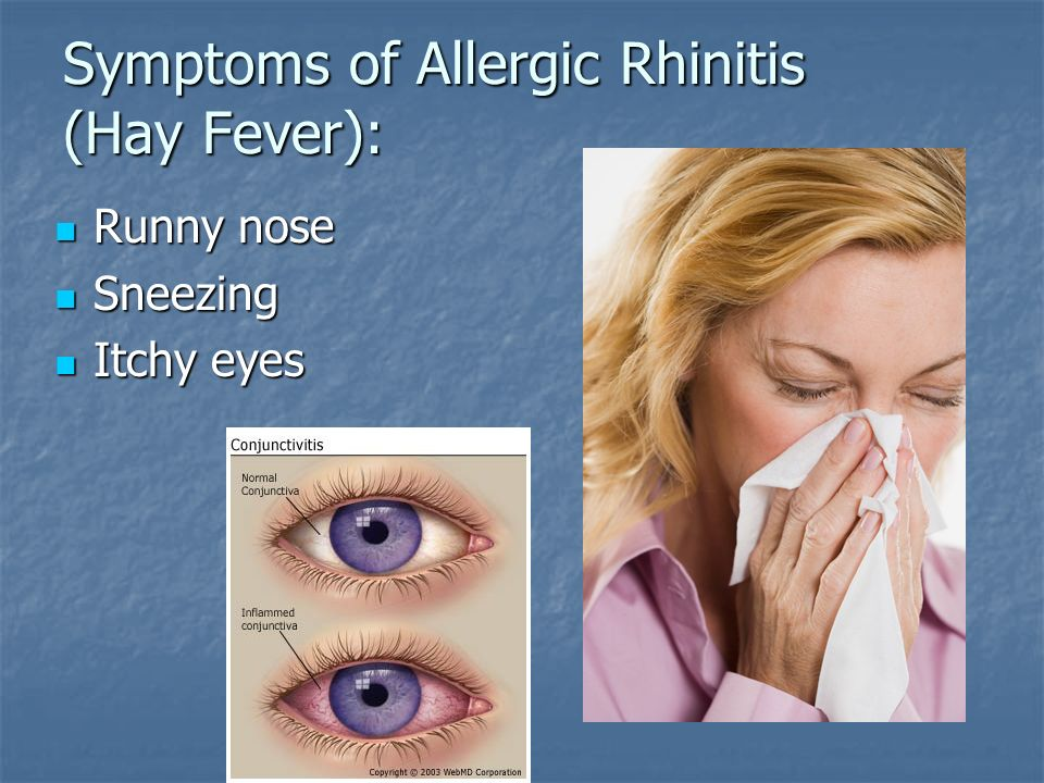 Allergic Rhinitis And Sinusitis For Primary Care Providers