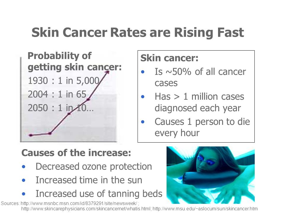 Skin Cancer Rates are Rising Fast