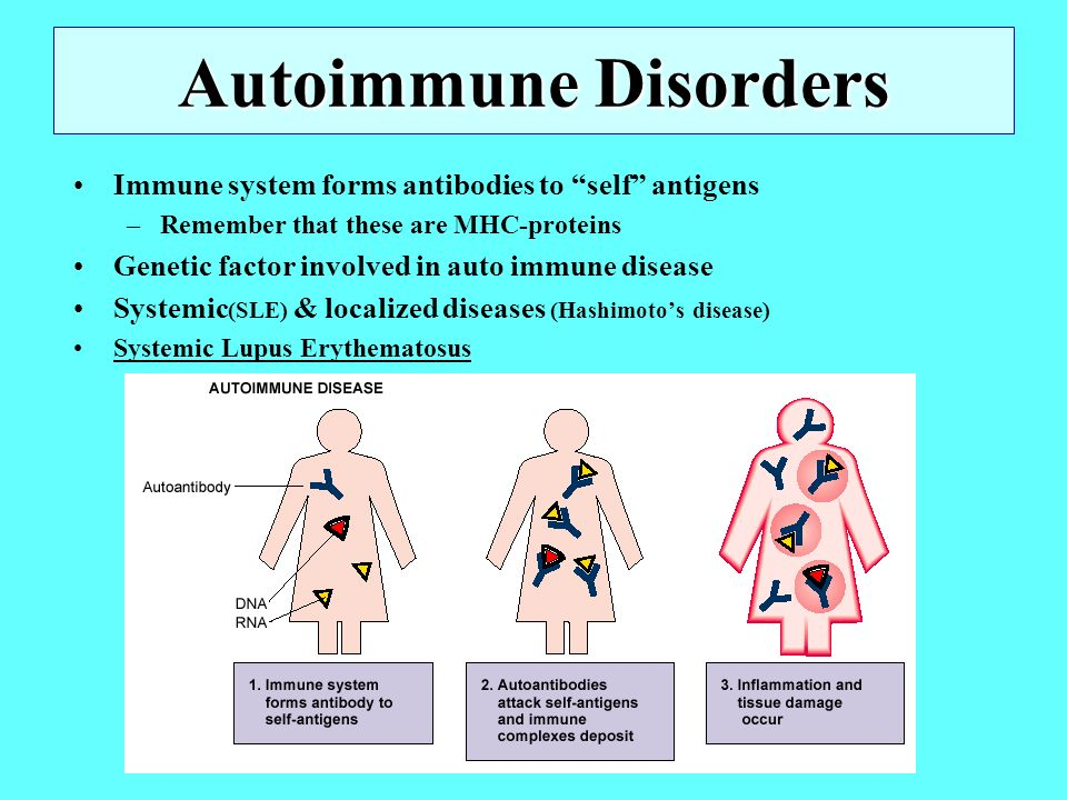 Facial auto immune disorders