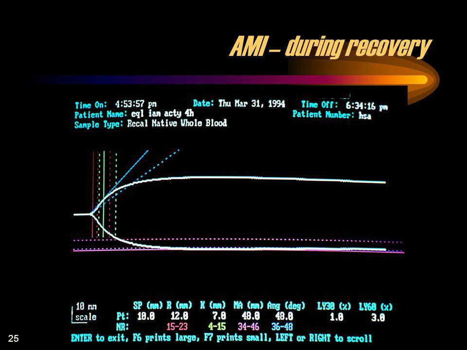AMI – during recovery AMI – during recovery