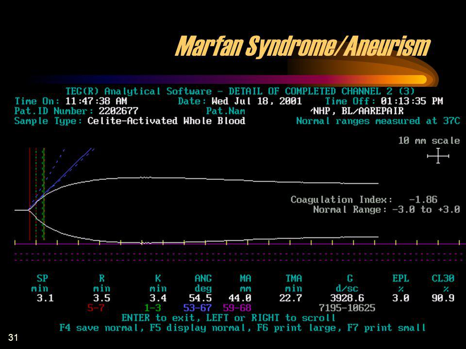 Marfan Syndrome/Aneurism