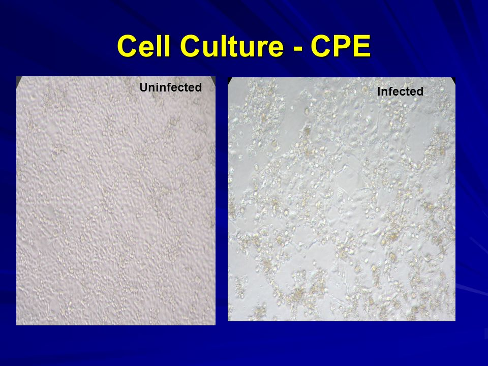 Cell Culture - CPE Uninfected Infected