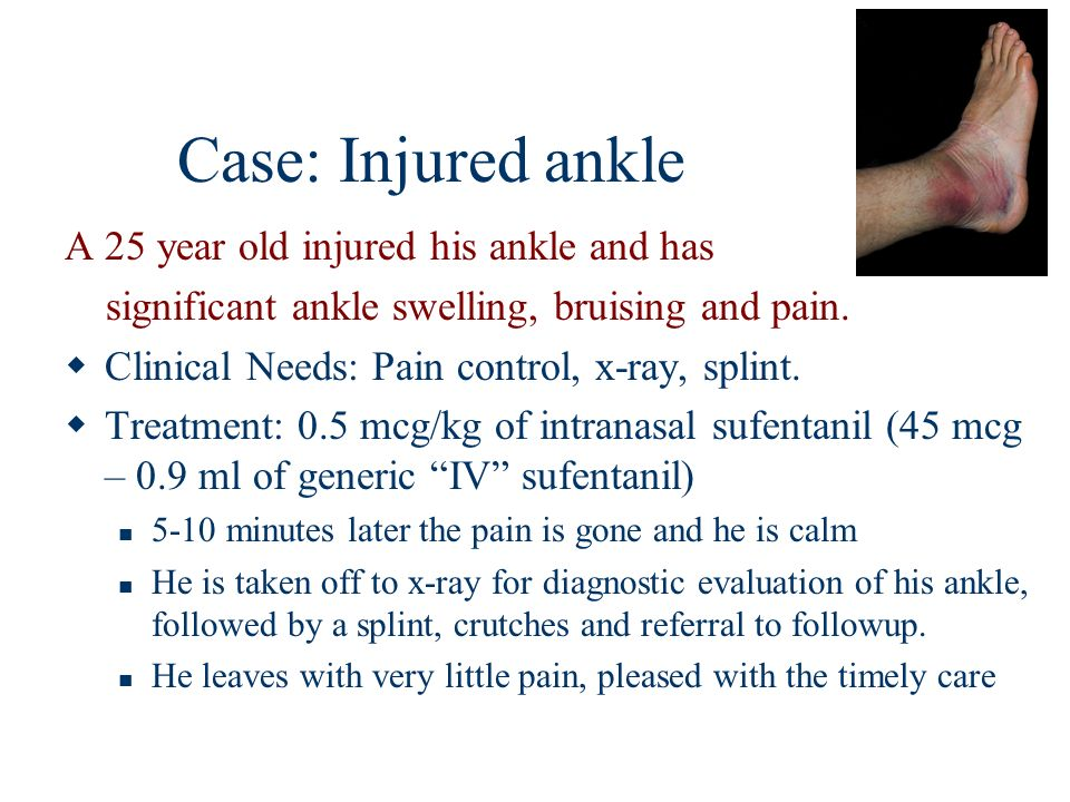 Case: Injured ankle A 25 year old injured his ankle and has