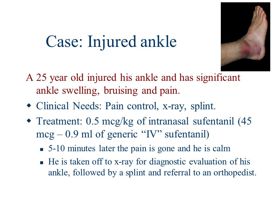 Case: Injured ankle A 25 year old injured his ankle and has significant ankle swelling, bruising and pain.