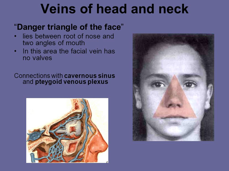 Veins of head and neck Danger triangle of the face